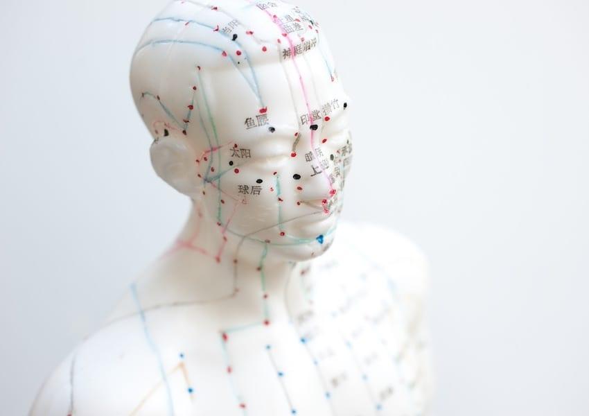 Risultati immagini per agopuntura in oncologia